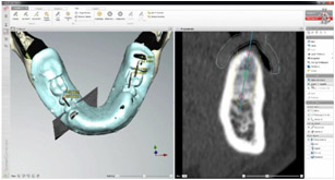 Cirugía Guiada 3D